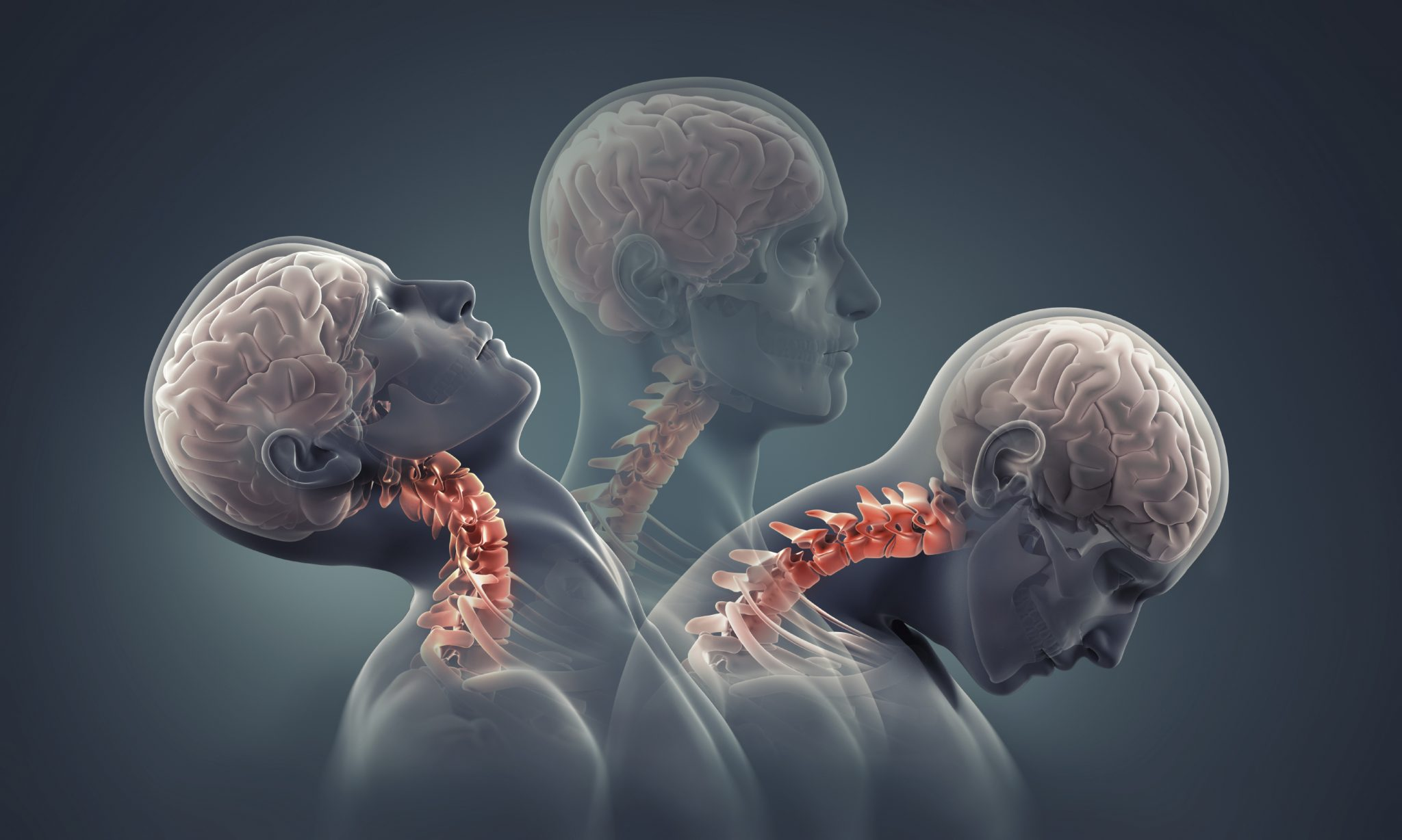 Whiplash Caused by Acceleration and Deceleration - El Paso Chiropractor