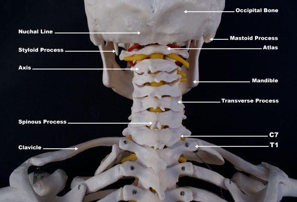 personal injury doctor occiptal_atlast_axis_craniovertebral anatomy