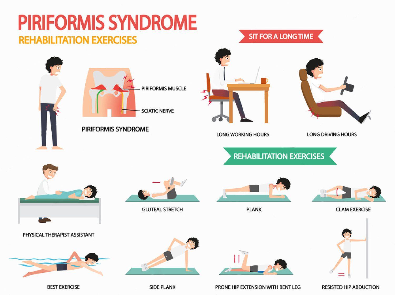 piriformis-syndrome-rehabilitation-exercises