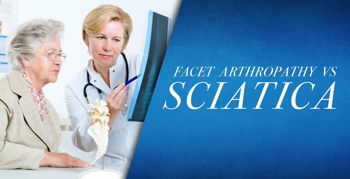 Facet Arthropathy vs Sciatica   El Paso, TX Chiropractor