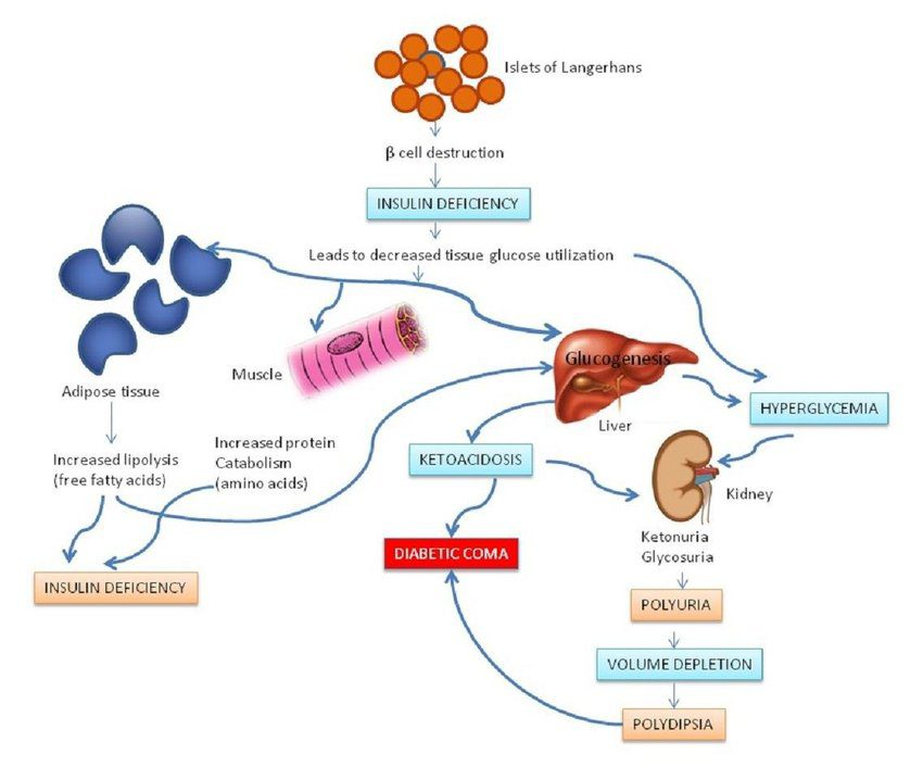 Pathophysiology-of-type-1-diabetes