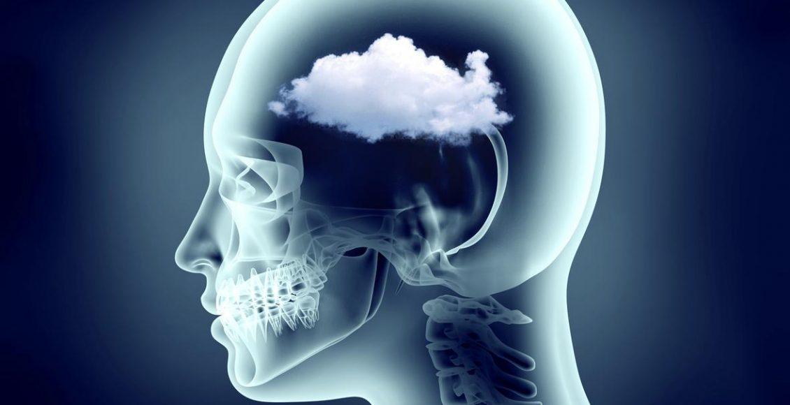 Functional Neurology: Understanding Brain Fog and Head Pain | El Paso, TX Chiropractor